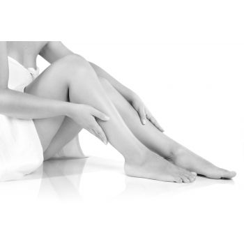 Vein Removal - Leg vein treatments - Tchabo MedSpa